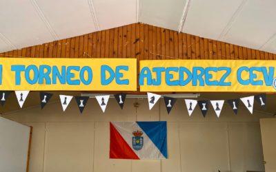 Entrevista a Elisa y Alejando en «Contigo Cantabria»